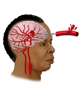 Picture of Intracerebral Hemorrhage
