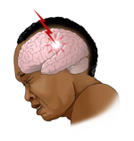 Picture of sudden severe headache with no known cause.